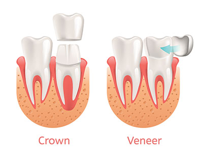 What is the Difference Between Crowns and Veneers | Dorothy Paul DDS