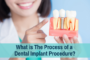 What is The Process of a Dental Implant Procedure?